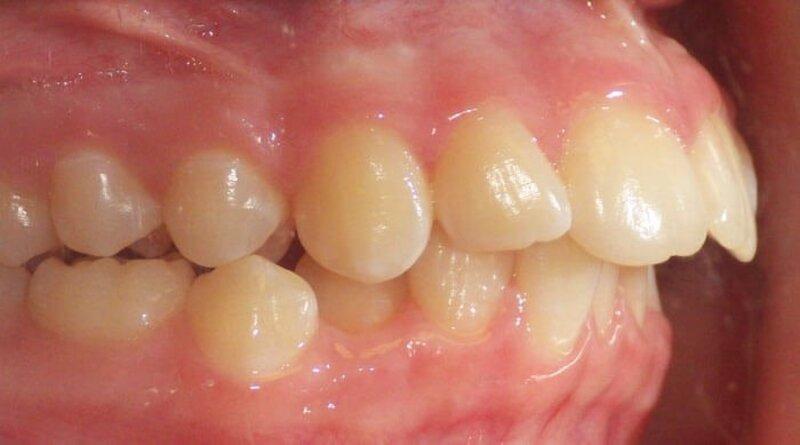 Hô nướu là tình trạng răng hô do phần xương hàm dưới nướu nhô ra quá nhiều