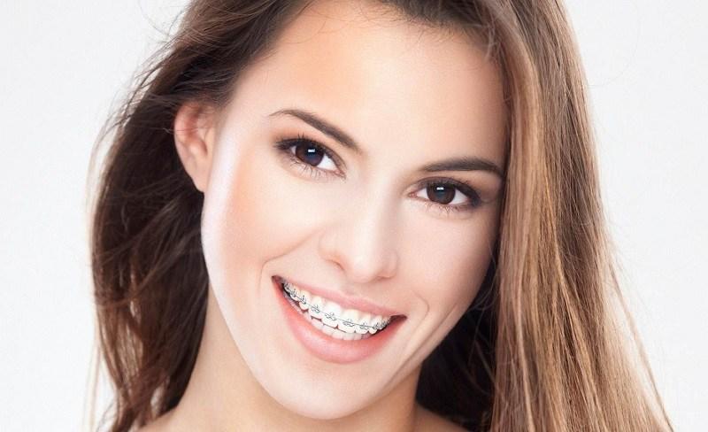Mắc cài kim loại là phương pháp niềng răng phổ biến nhất hiện nay