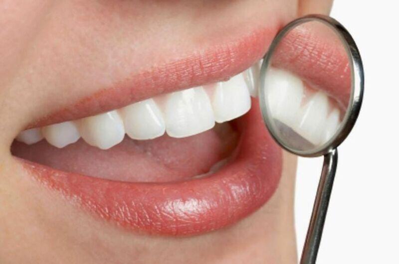 Lưu ý cần vệ sinh răng miệng thường xuyên để tránh trường hợp tái phát