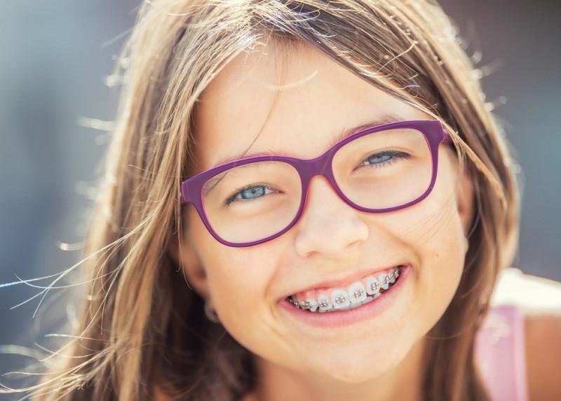 Cách chỉnh răng lệch đường giữa hiệu quả nhất