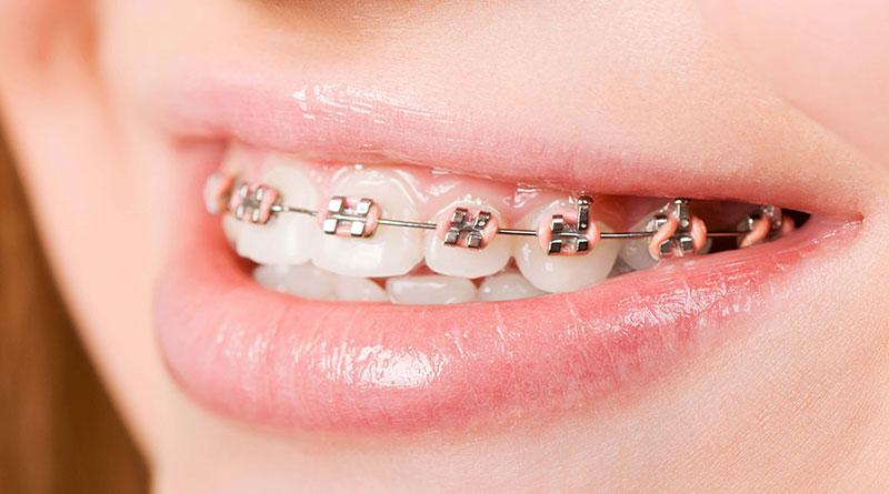 Có 2 loại khí cụ phổ biến để bệnh nhân có thể niềng răng