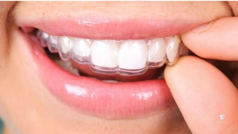 Invisalign - Phương pháp niềng răng hiện đại nhất hiện nay