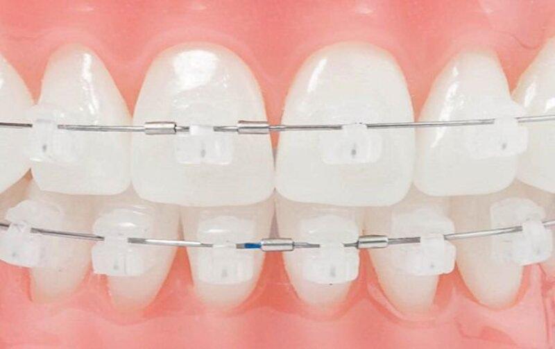 Dây cung niềng răng là loại khí cụ quan trọng trong chỉnh nha