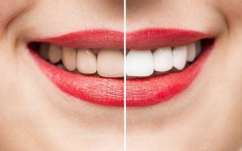 Tẩy trắng răng không an toàn là một nguyên nhân điển hình