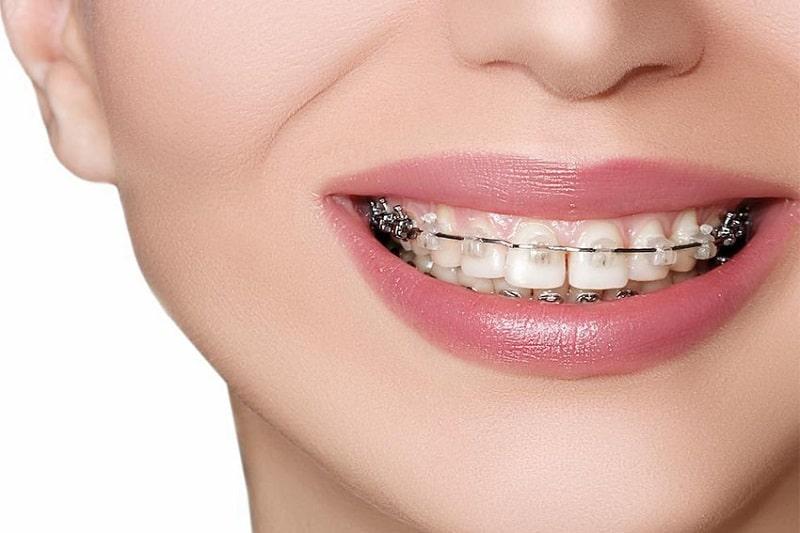 Có rất nhiều yếu tố khá nhau quy định mức giá của niềng răng