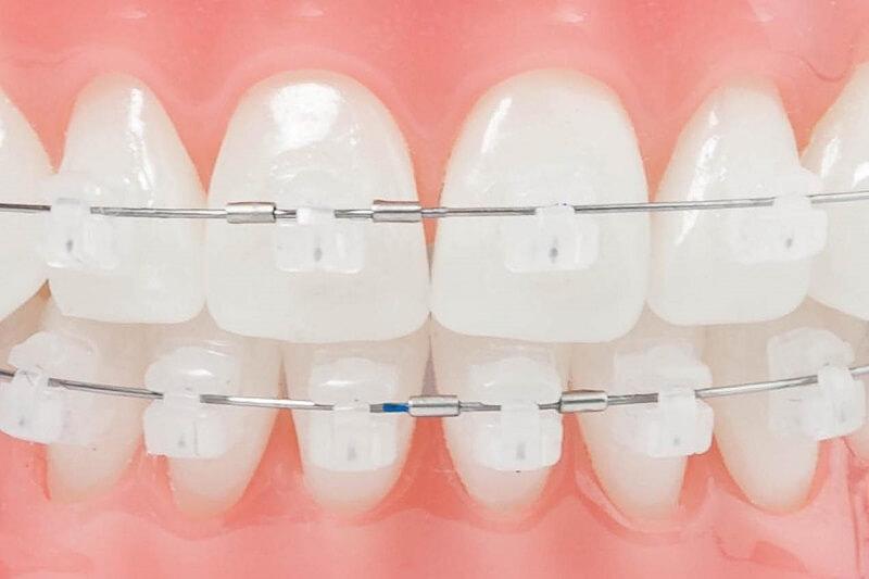 Tùy thuộc vào chất liệu cũng như cấu tạo của mắc cài mà giá niềng răng các loại mắc cài cũng khác nhau