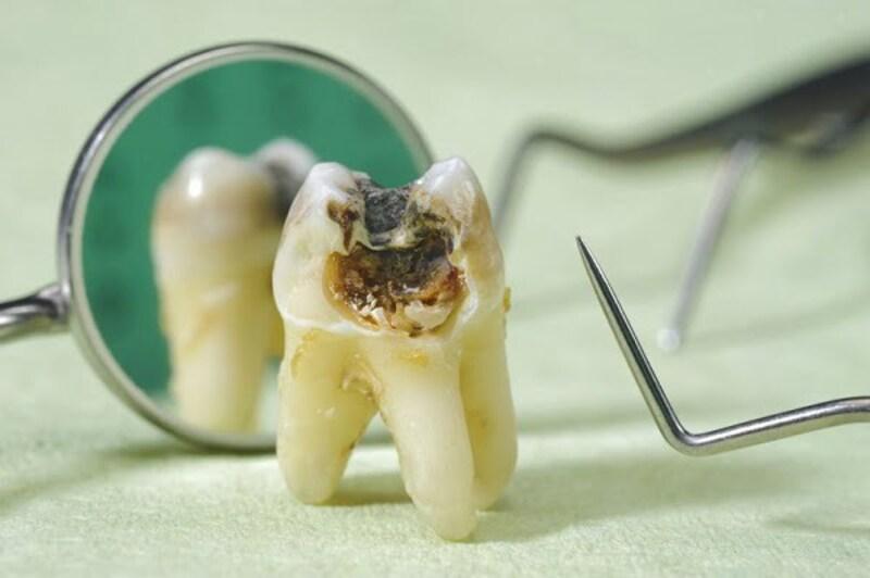 Lựa chọn phương pháp điều trị sâu răng sớm sẽ cải thiện được tình trạng răng miệng