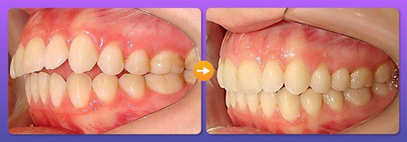 Dưới đây là sự thay đổi rõ rệt trước và sau khi niềng răng hô