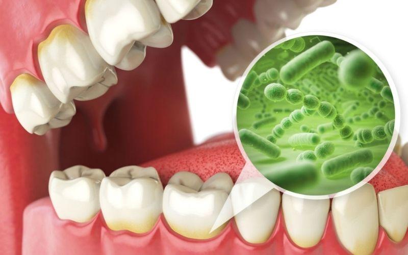 Vi khuẩn là một trong những nguyên nhân chính gây hôi miệng
