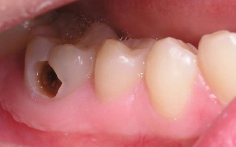 Bệnh cũng là hậu quả của một số bệnh lý răng miệng điển hình
