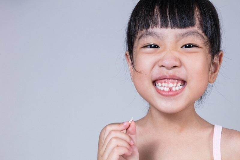 Niềng răng cho trẻ em ngay từ sớm sẽ giúp khắc phục kịp thời những vấn đề về răng