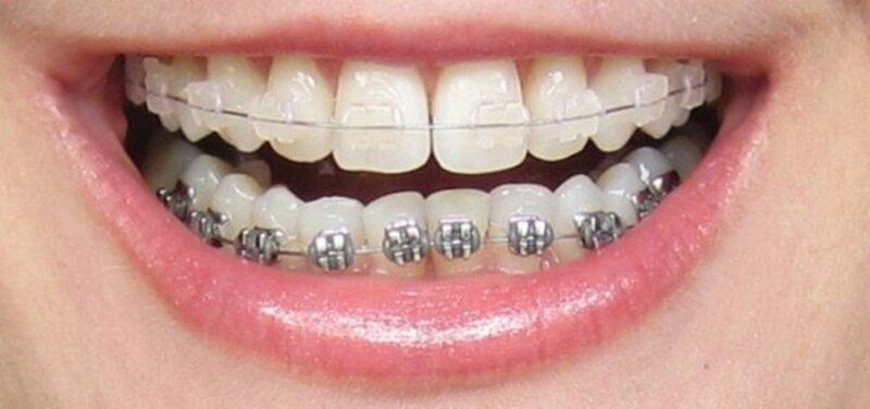 Niềng răng mắc cài tự đóng và mắc cài thường