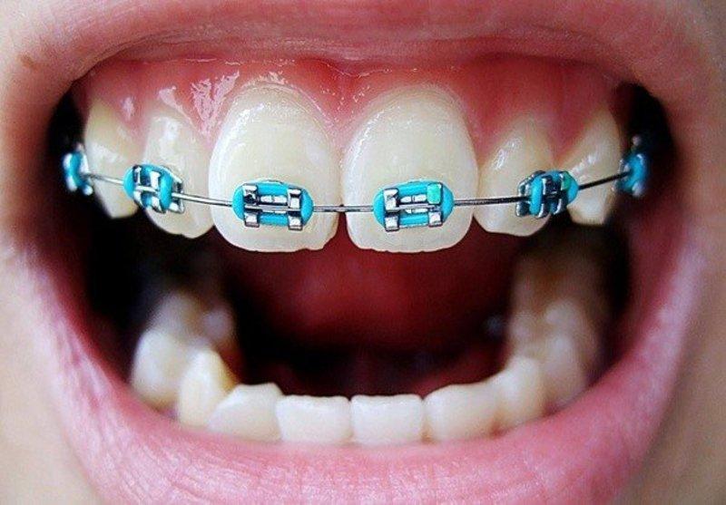 Niềng 2 răng là phương pháp rất hiếm khi được áp dụng trong quá trình chỉnh nha