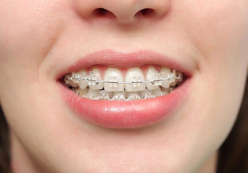 Niềng pha lê áp dụng được cho mọi trường hợp răng miệng