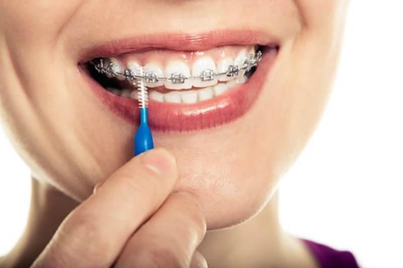 Người bệnh cần vệ sinh răng miệng sạch sẽ trong quá trình niềng