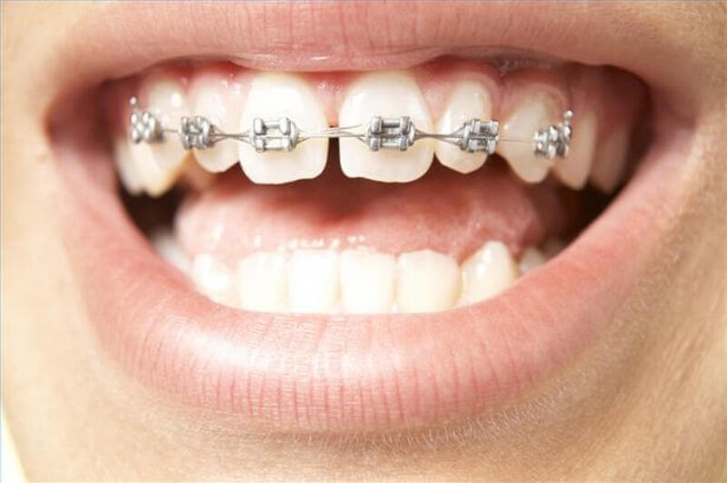 Việc niềng răng còn dựa vào nhiều yếu tố khác nhau