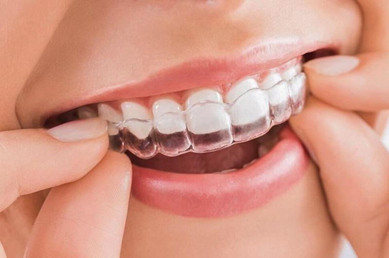 Niềng răng trong suốt Invisalign là phương pháp hiện đại và đắt đỏ