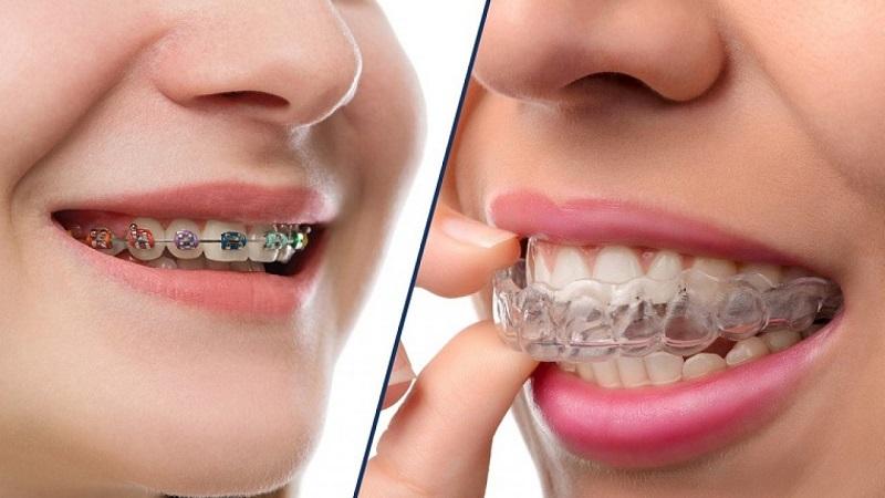Niềng răng là phương pháp phổ biến nhất giúp khắc phục nhược điểm về răng