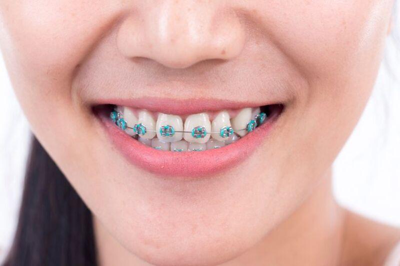 Có rất nhiều nguyên nhân gây nên niềng răng bị tụt lợi