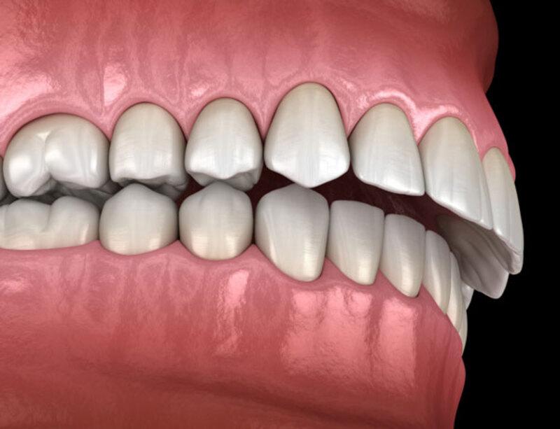 Niềng răng hô bằng nhựa ngoài những ưu điểm còn có những nhược điểm khác