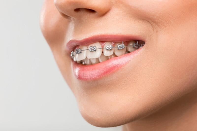 Có nhiều biện pháp giúp bệnh nhân niềng răng không bị tụt lợi