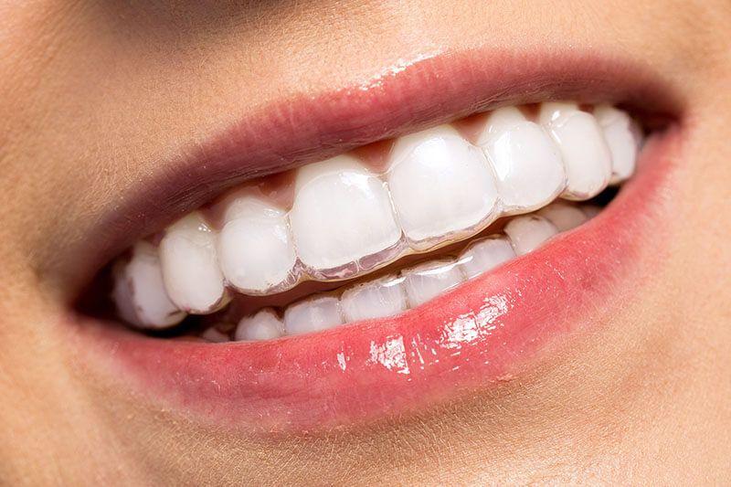 Phương pháp niềng răng eCligner phổ biến hiện nay