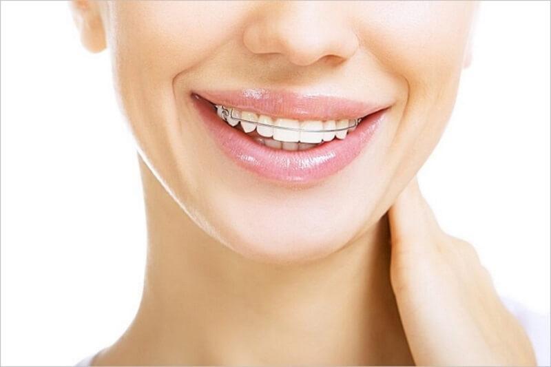 Hàm duy trì sẽ giúp ổn định tình trạng răng của bạn sau khi niềng