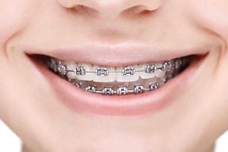 Phương pháp niềng bằng kim loại được áp dụng ở nhiều khách hàng