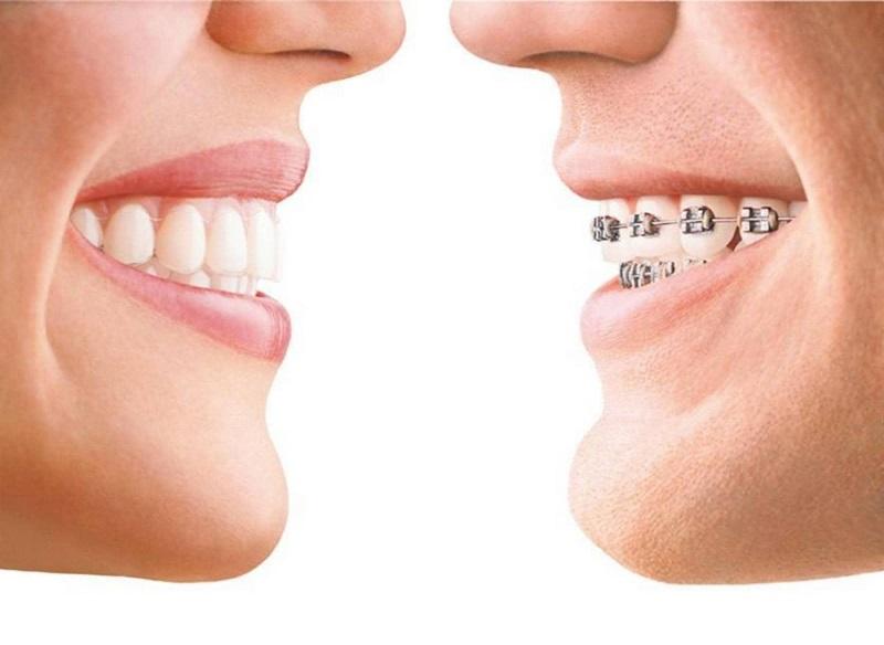 Niềng răng là tình trạng chữa răng hô, cằm không lẹm tốt nhất