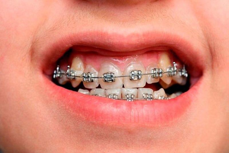 Có rất nhiều nguyên nhân dẫn đến tình trạng niềng răng hô xong bị móm