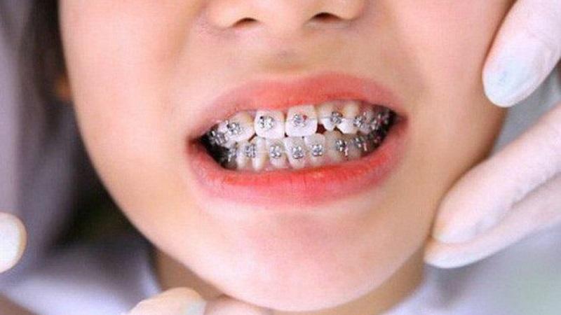 Trẻ nhỏ niềng răng thì thời gian thường sẽ nhanh hơn