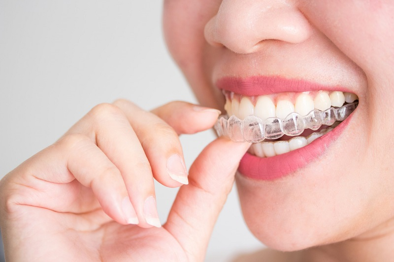 Việc niềng răng sẽ mang lại rất nhiều lợi ích cho mỗi người