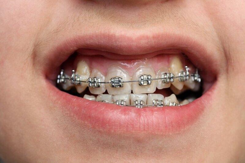 Niềng răng khểnh là phương pháp chỉnh nha tương tự như các phương pháp niềng răng khác