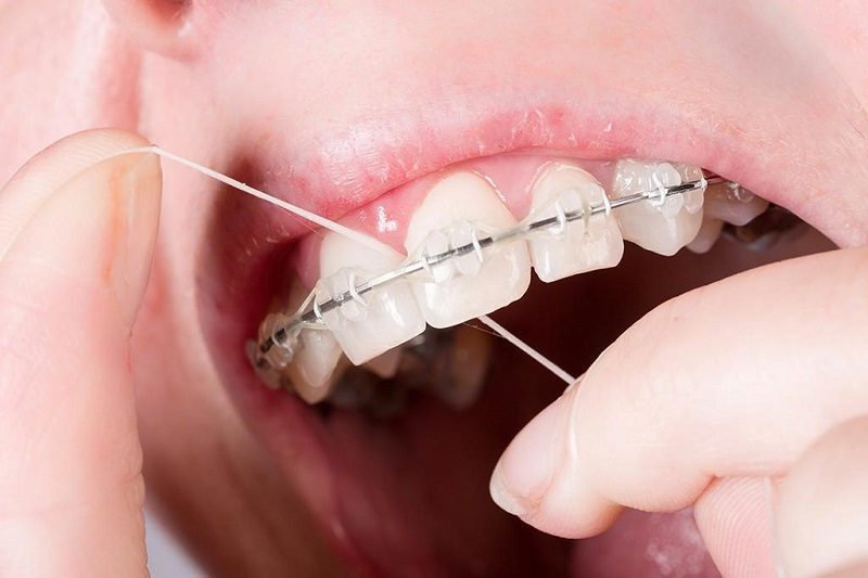 Cần lưu ý vệ sinh răng miệng sạch sẽ khi niềng răng