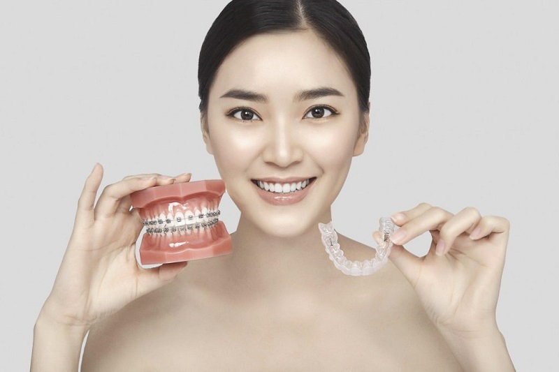 Phương pháp niềng răng không mắc cài 3D Clear áp dụng được cho nhiều đối tượng