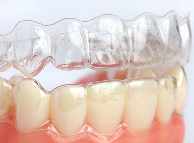 Niềng răng 3D Clear có tính thẩm mỹ rất cao