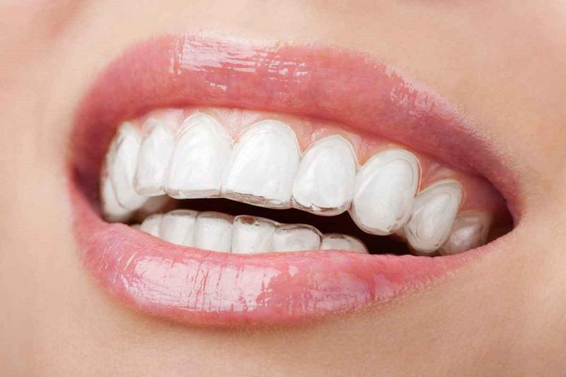 Công nghệ niềng răng 3D Clear được nhiều người tin dùng hiện nay