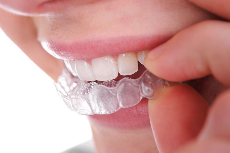 Phương pháp có giá tốt nhất trong kỹ thuật chỉnh răng trong suốt hiện nay