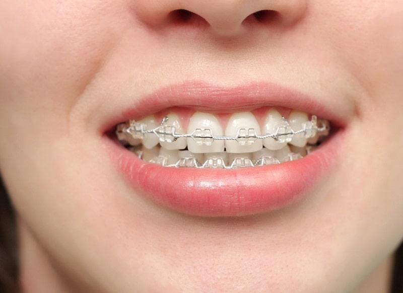 Niềng răng là hình thức chỉnh nha cải thiện tình trạng này