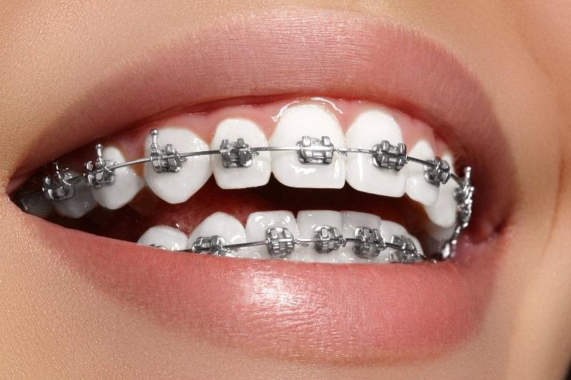 Niềng răng bằng mắc cài kim loại để kéo răng