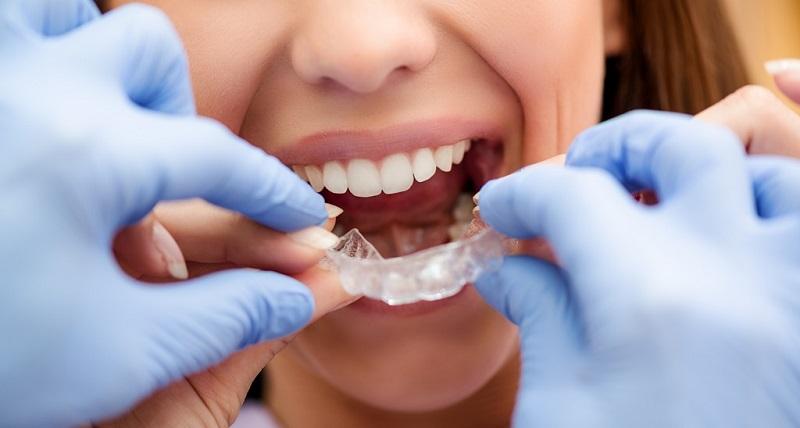 Quy trình niềng răng cẩn thận, khoa học và chuyên nghiệp