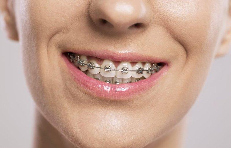Niềng răng lệch khớp cắn sẽ giải quyết được cơ bản phần nào vấn đề này