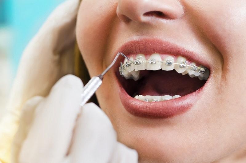 Quy trình niềng răng bao gồm nhiều bước khác nhau