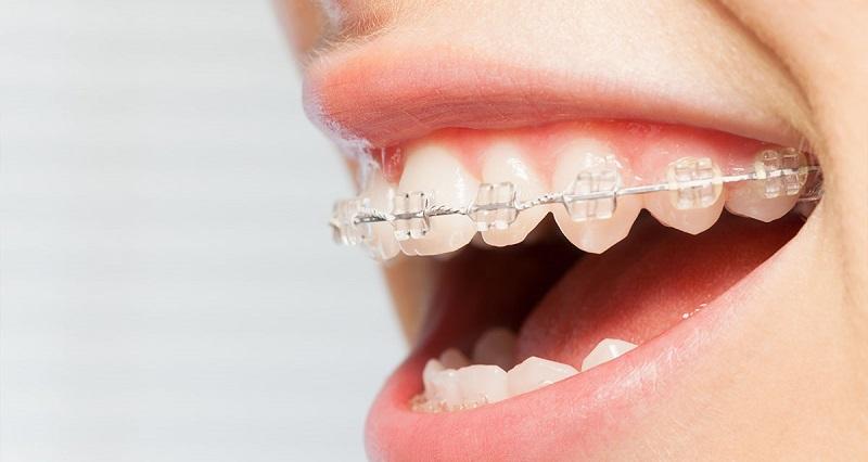 Niềng răng sử dụng mắc cài sứ