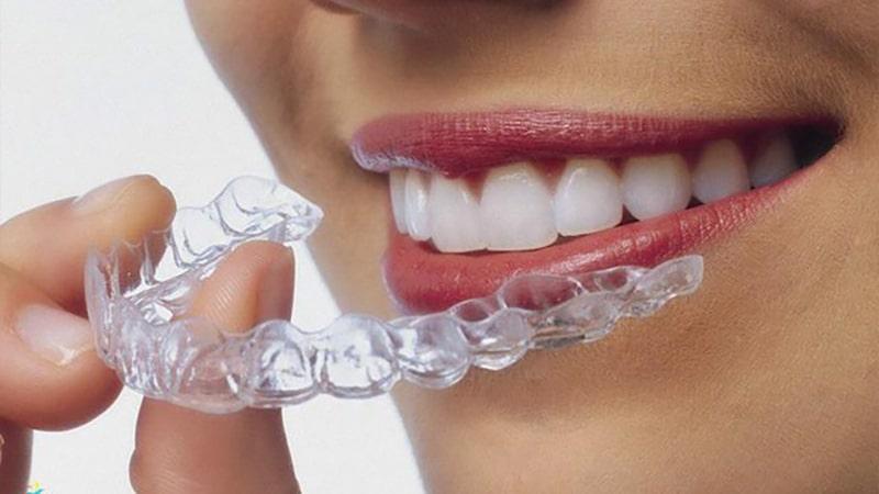 Quy trình niềng răng đúng chuẩn, khoa học