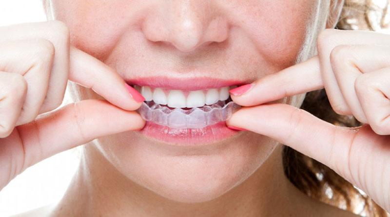 Hình thức niềng răng Leetray cũng được áp dụng nhiều hiện nay