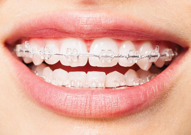 Niềng răng sứ dùng được cho mọi đối tượng khác nhau
