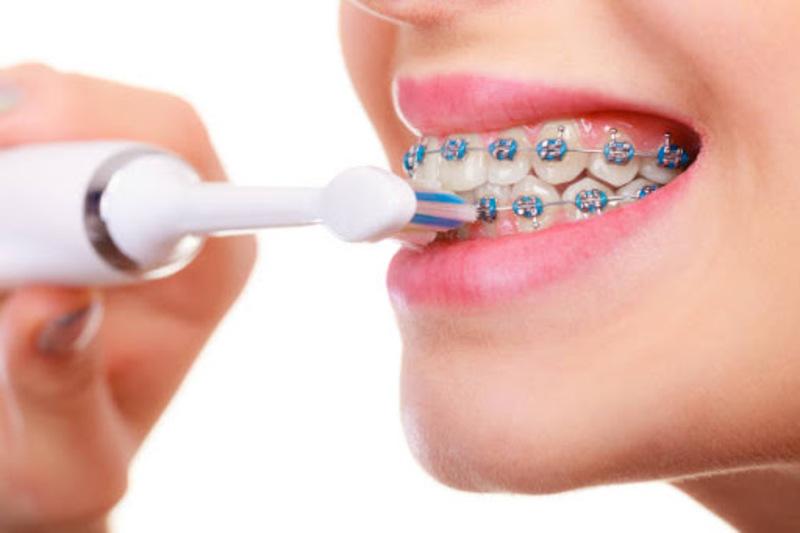 Luôn nhớ vệ sinh răng miệng sạch sẽ sau khi ăn