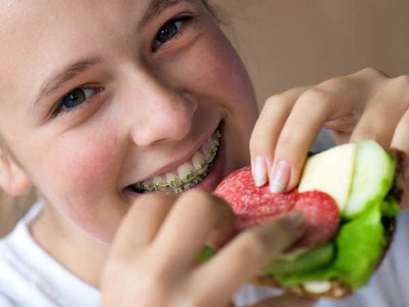 Trong thời gian niềng răng chế độ ăn rất quan trọng