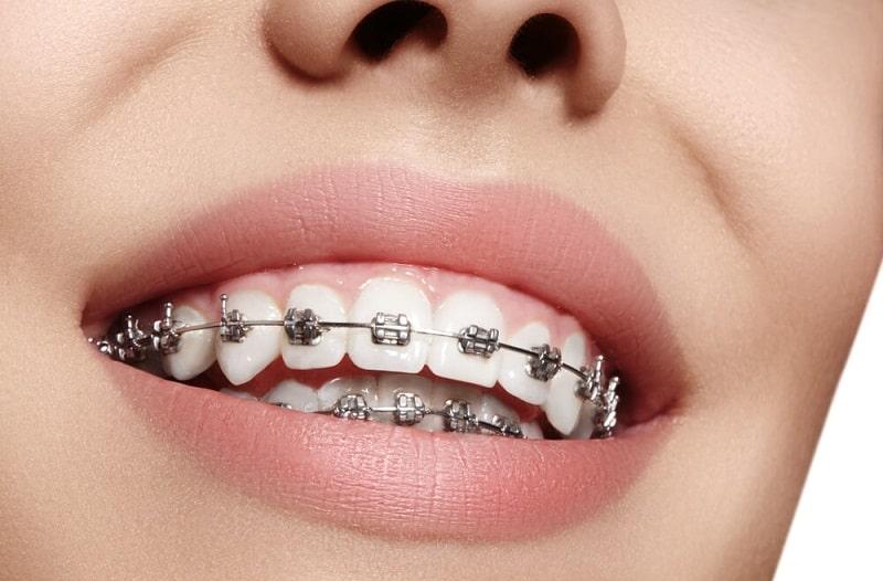 Chi phí niềng răng bằng sắt là thấp nhất trong tất cả các phương pháp